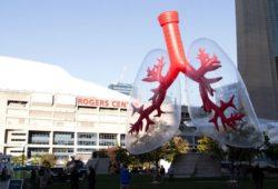 pulmones gigantes
